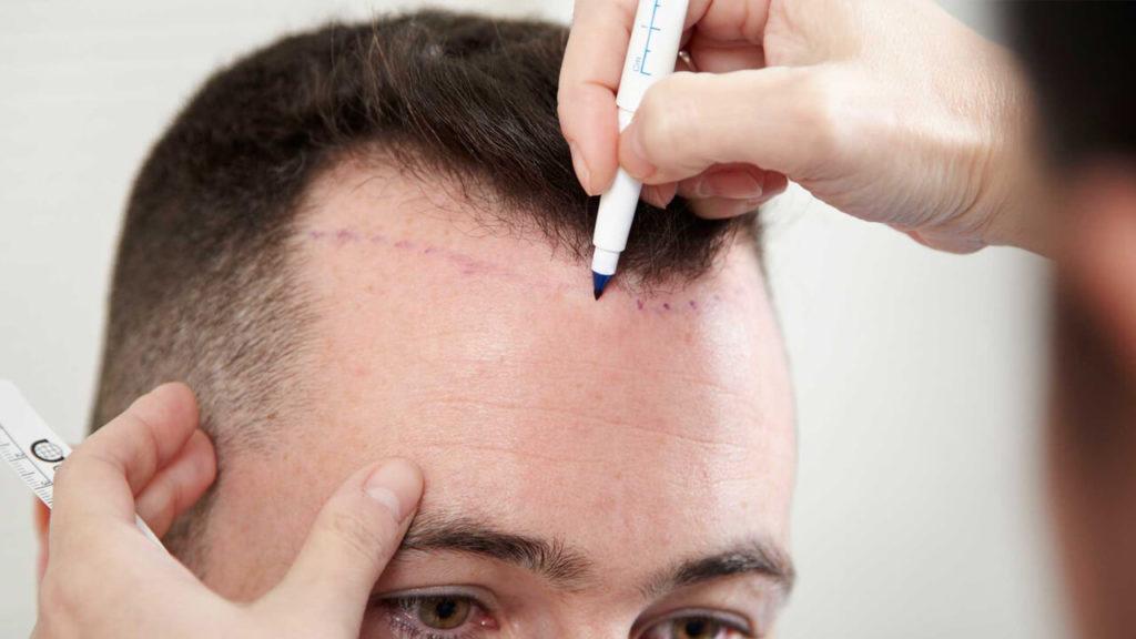 Hair Transplantation – Global Connect Travel